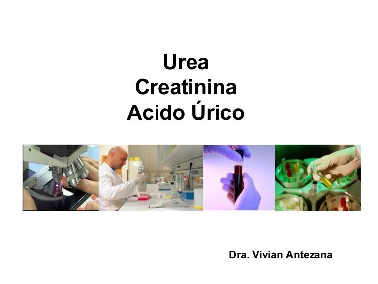 tratamiento natural para combatir la gota acido urico como eliminarlo del cuerpo que alimentos se pueden comer para bajar el acido urico