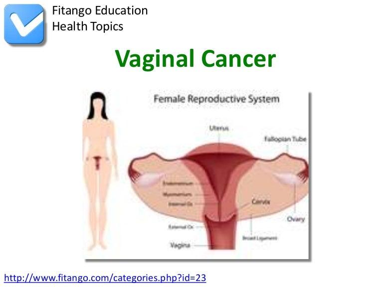 Spice naked vagina cancer symptoms barrymore sex