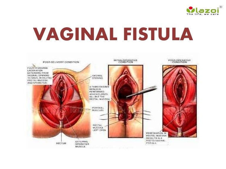 Vaginal Fistula Causes, Symptoms, Diagnosis, And Treatment-5727