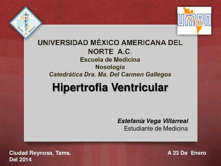 Hipertrofia septal asimétrica hipertensión fisiopatología