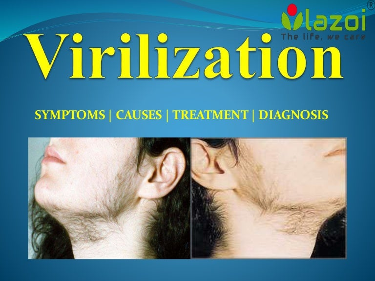 virilization: a common female health condition, Skeleton