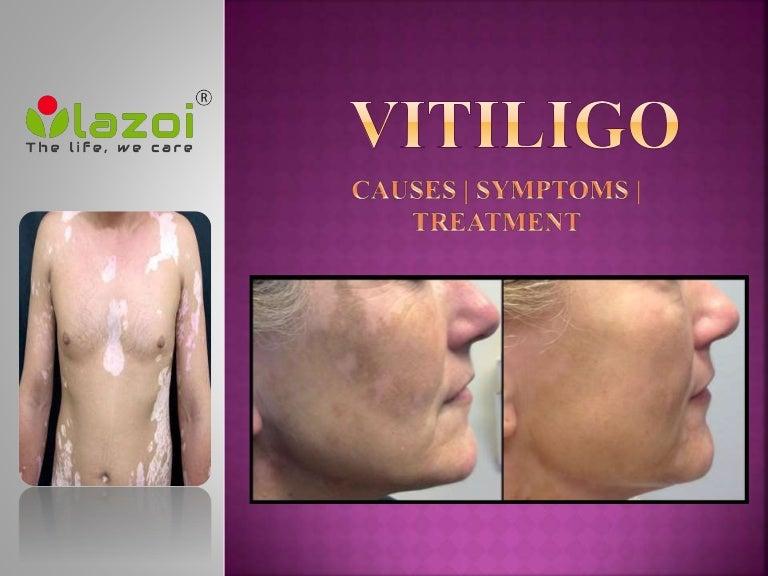 Vitiligo Causes Symptoms Diagnosis And Treatment