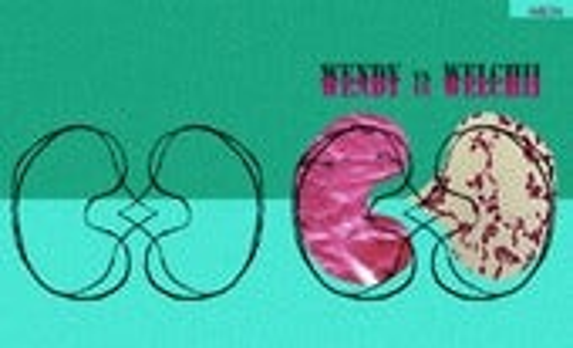 Wendy vs welchii novela grafica Ana Bell Chino