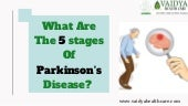 What Are The 5 Stages Of Parkinson's Disease?