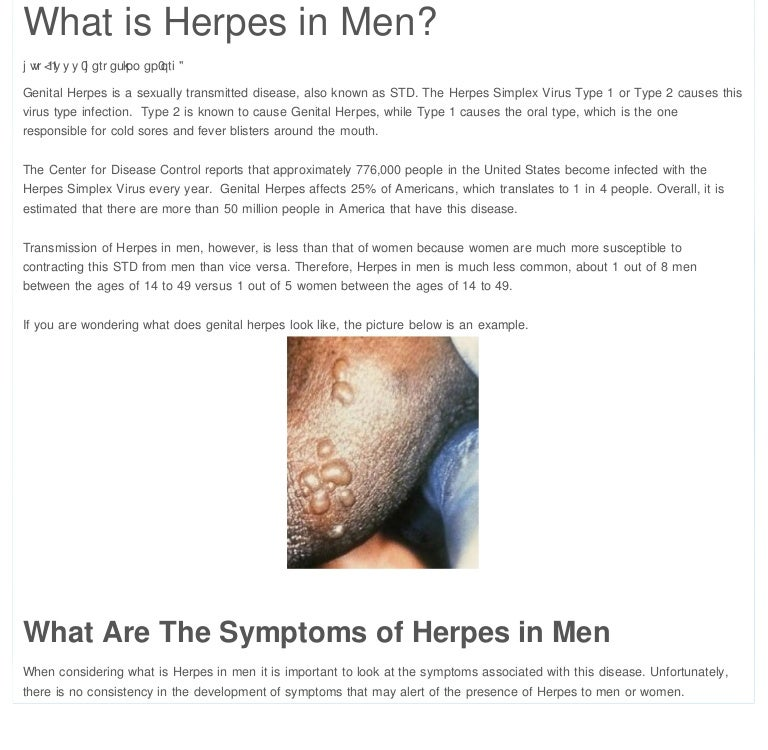 Does Herpes Virus Cause Bell's Palsy