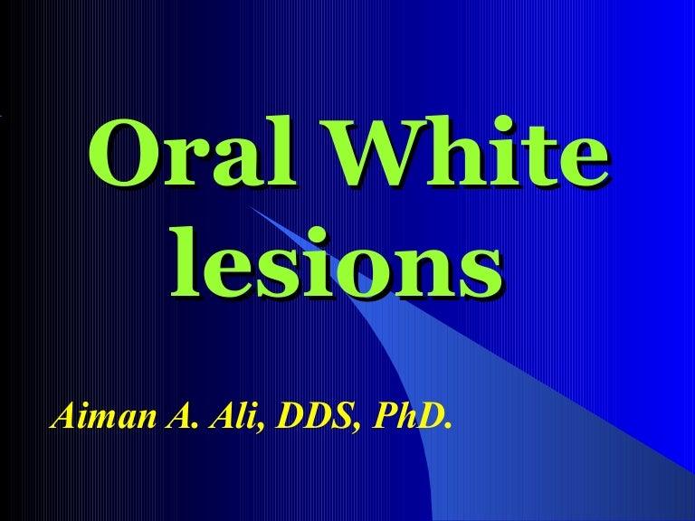 D of keratotic white lesions.