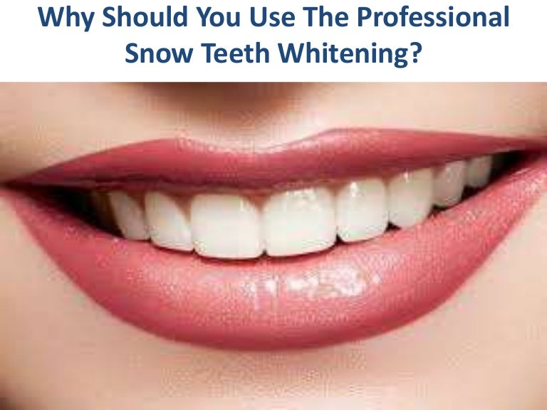 Retail Store  Snow Teeth Whitening Kit