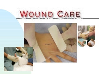 Wound care 09