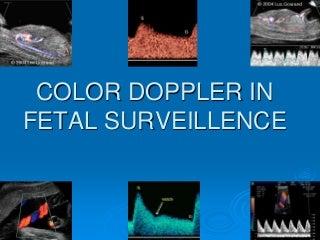 Antenatal doppler